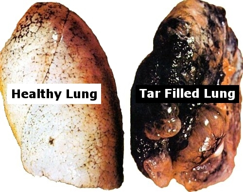 Marijuana And Your Lungs